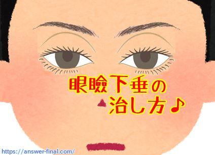 眼瞼下垂の手術で失敗