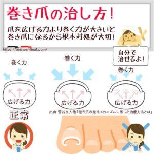 巻き爪の治し方